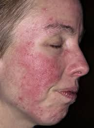 ROSACEA - COURT OF ZIZAI DERMATOLOGY